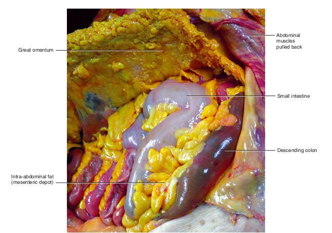 viscerofascia