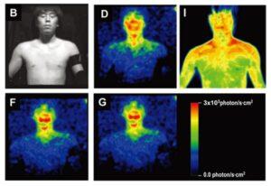 Biofotones cuerpo humano